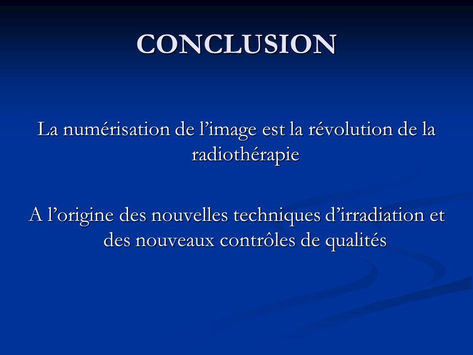 La numérisation de l'image est la révolution de la radiothérapie