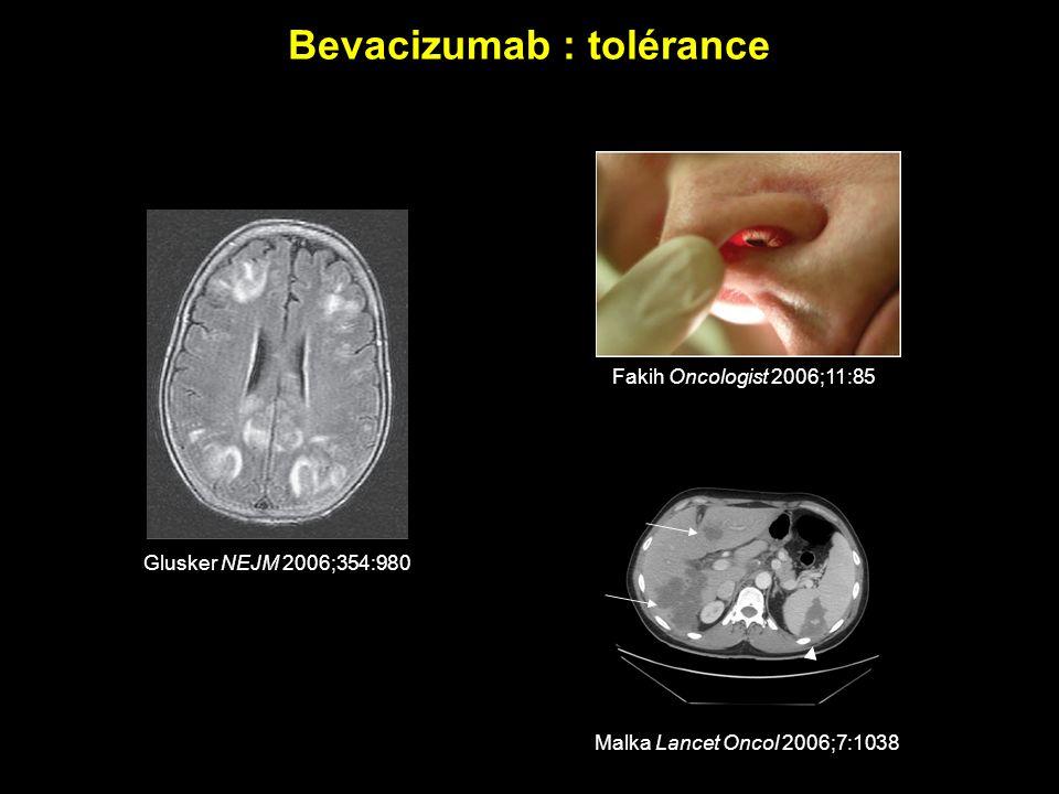 Bevacizumab : tolérance