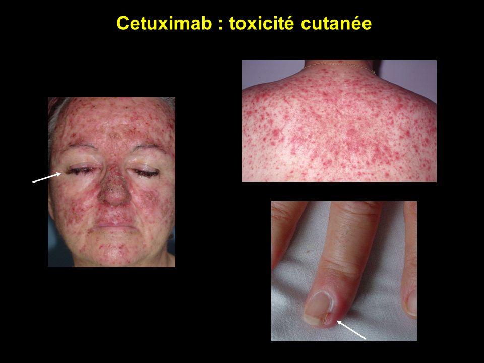 Cetuximab : toxicité cutanée