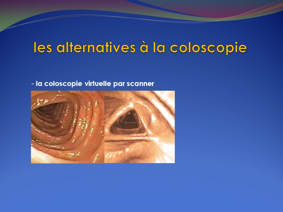 les alternatives à la coloscopie