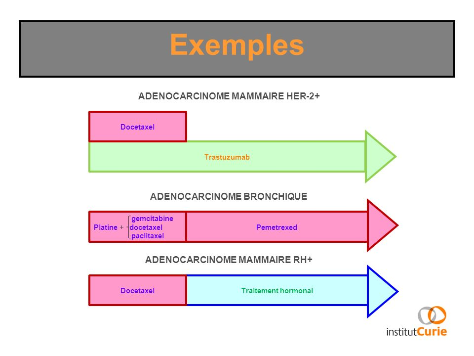 Exemples ADENOCARCINOME MAMMAIRE HER-2+ ADENOCARCINOME BRONCHIQUE