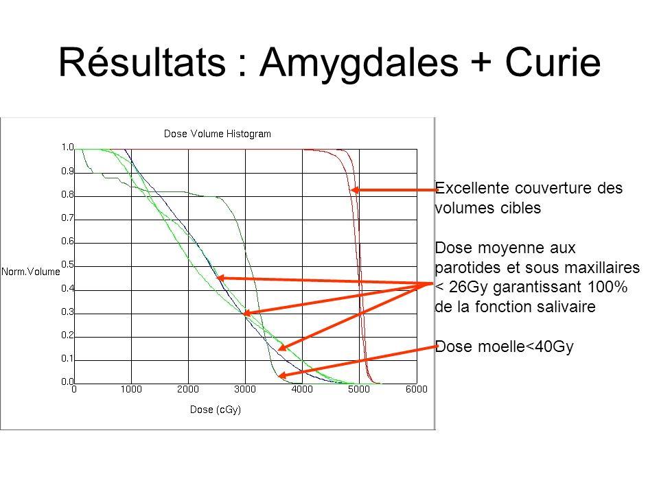 Résultats : Amygdales + Curie
