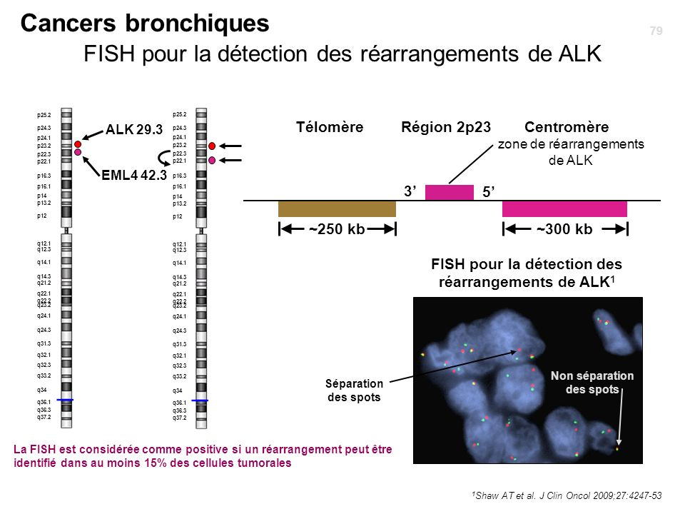 Cancers bronchiques FISH pour la détection des réarrangements de ALK