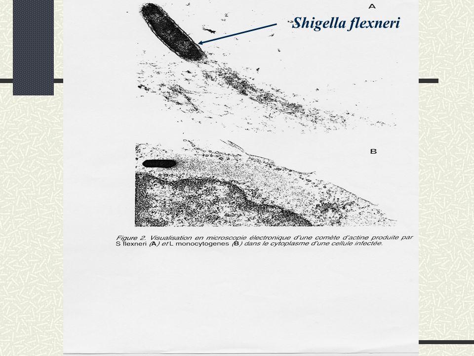 Shigella flexneri