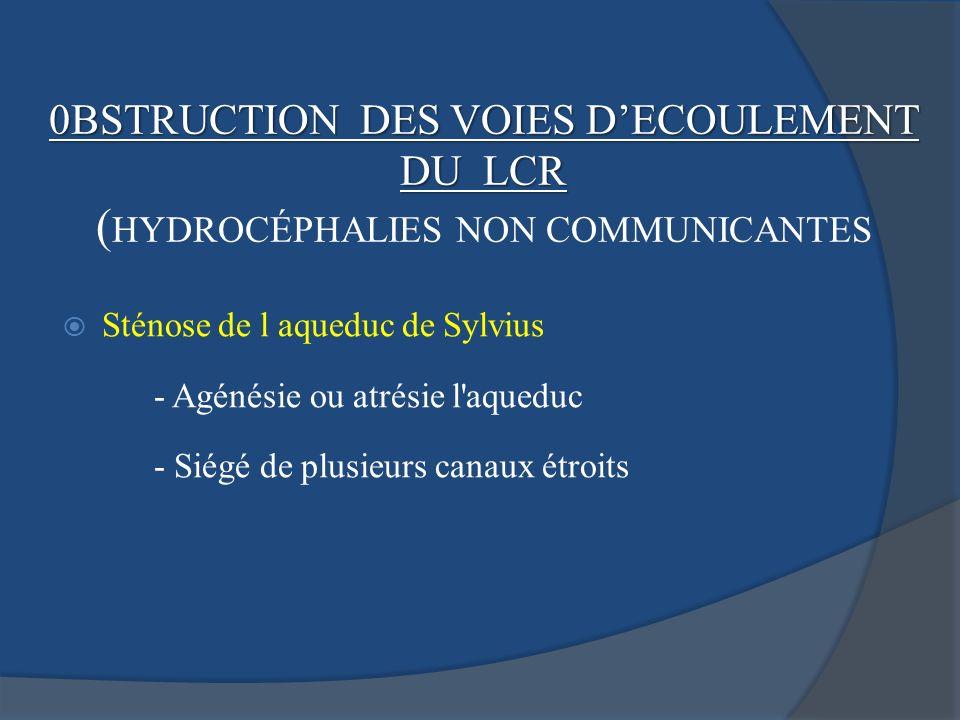 (HYDROCÉPHALIES NON COMMUNICANTES