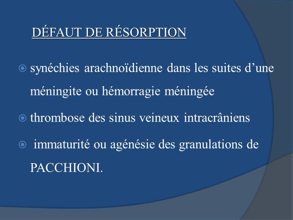 DÉFAUT DE RÉSORPTIONsynéchies arachnoïdienne dans les suites d'une méningite ou hémorragie méningée.