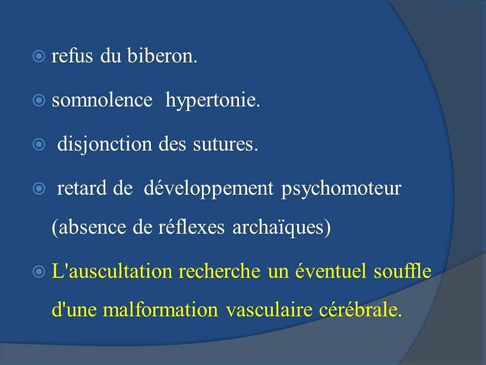 refus du biberon. somnolence hypertonie. disjonction des sutures. retard de développement psychomoteur (absence de réflexes archaïques)