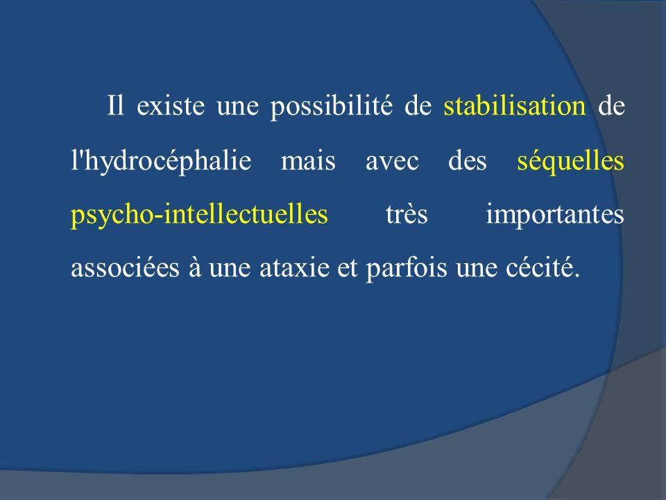Il existe une possibilité de stabilisation de l hydrocéphalie mais avec des séquelles psycho-intellectuelles très importantes associées à une ataxie et parfois une cécité.