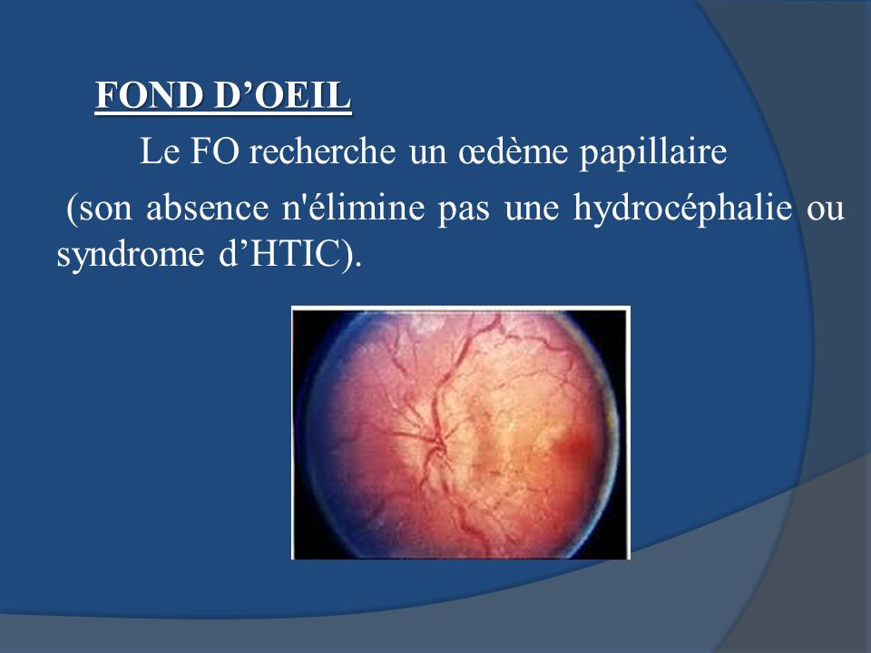 (son absence n élimine pas une hydrocéphalie ou syndrome d'HTIC).