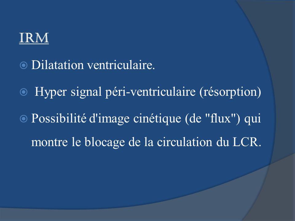 IRM Dilatation ventriculaire. Hyper signal péri-ventriculaire (résorption)