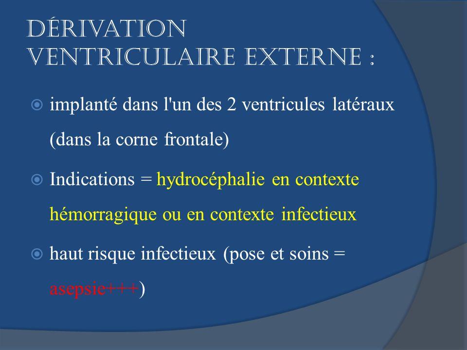 Dérivation ventriculaire externe :