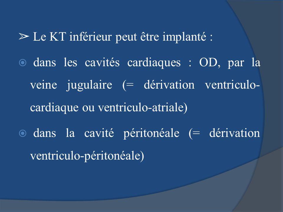 ➢ Le KT inférieur peut être implanté :