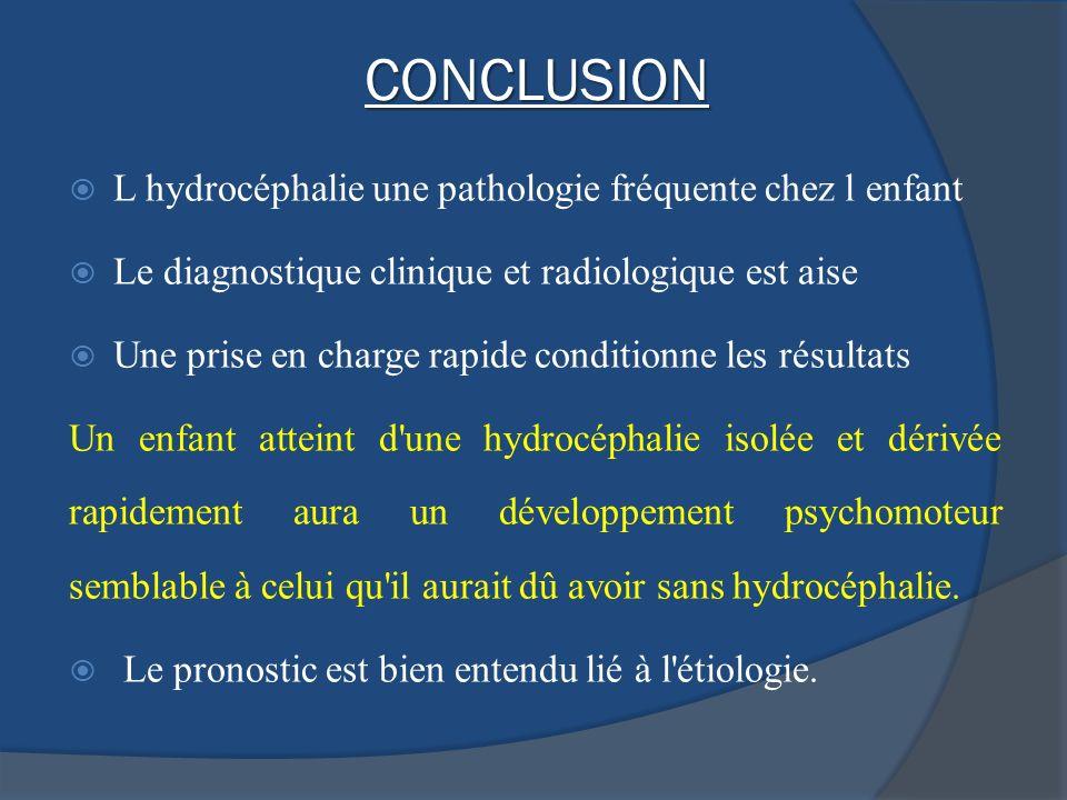 CONCLUSION L hydrocéphalie une pathologie fréquente chez l enfant