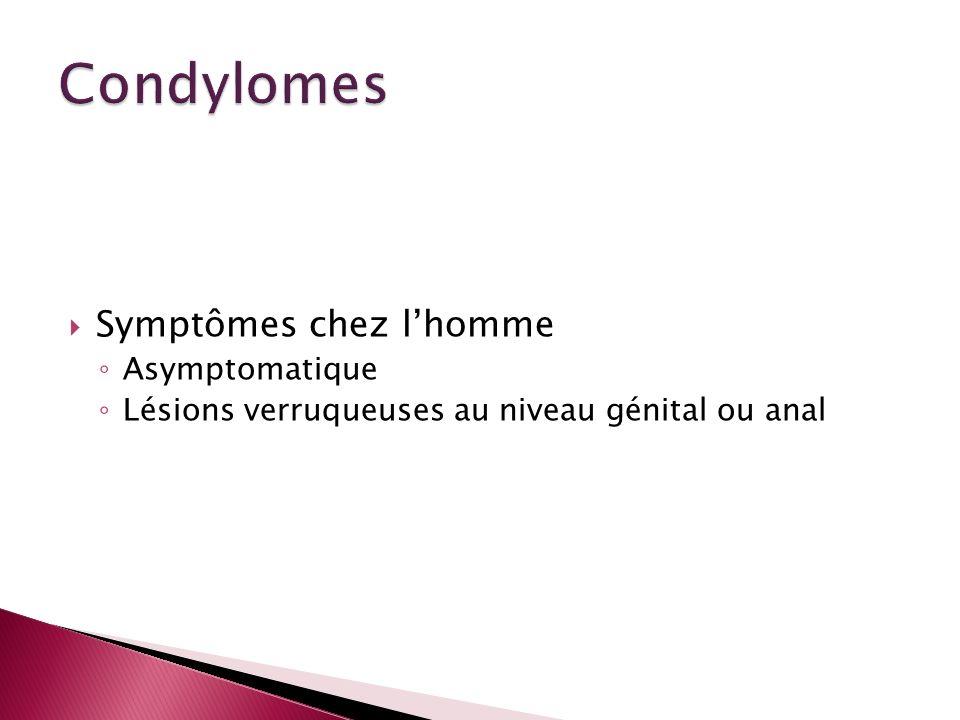 Condylomes Symptômes chez l'homme Asymptomatique