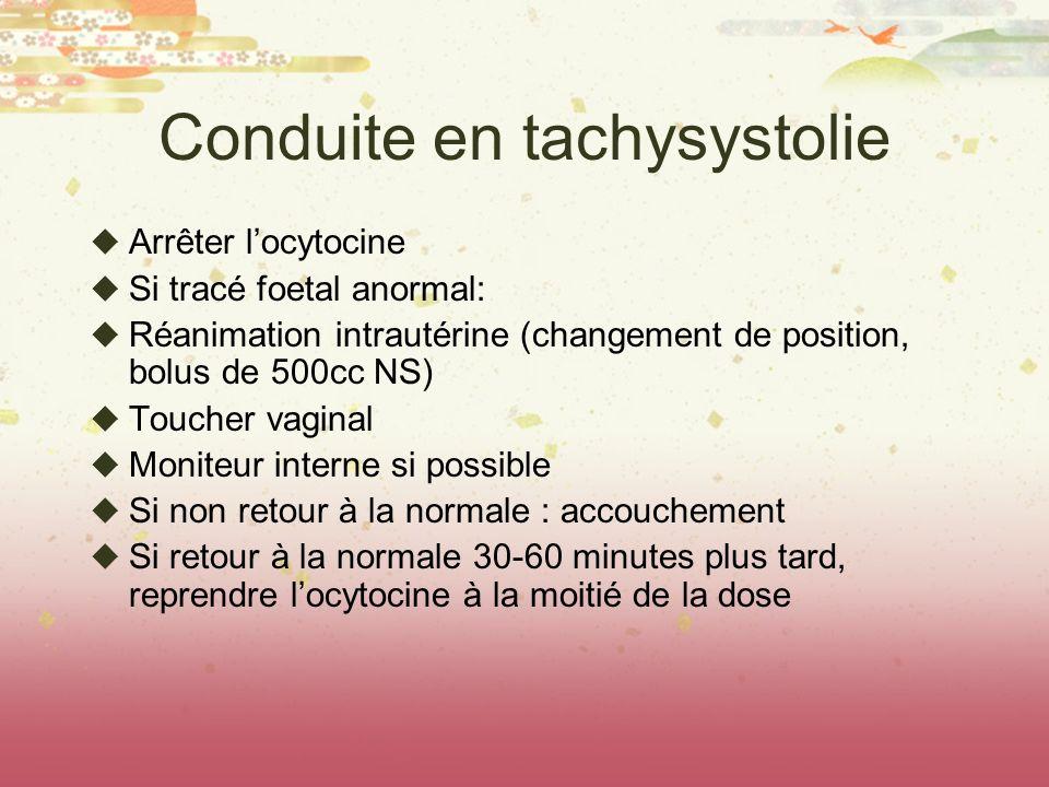 Conduite en tachysystolie
