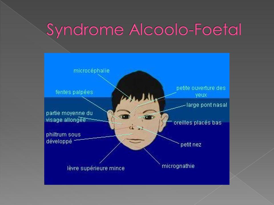 Syndrome Alcoolo-Foetal