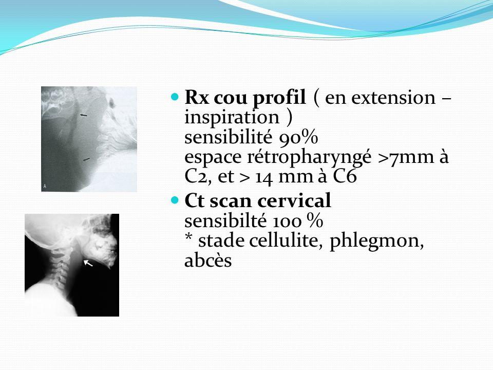 Rx cou profil ( en extension – inspiration ) sensibilité 90% espace rétropharyngé >7mm à C2, et > 14 mm à C6