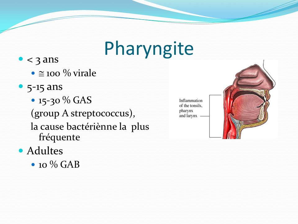Pharyngite < 3 ans 5-15 ans Adultes  100 % virale 15-30 % GAS