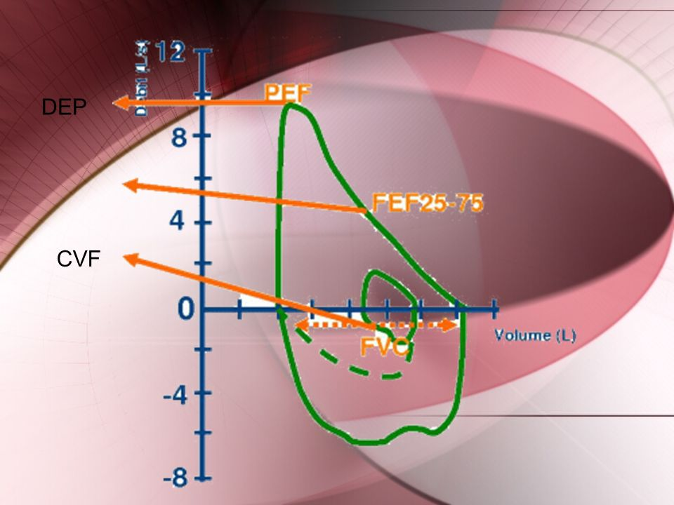 DEP CVF http://www.spirometrie.fr/index.php ids=9