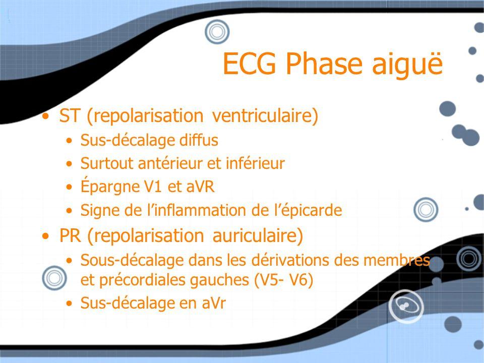 ECG Phase aiguë ST (repolarisation ventriculaire)