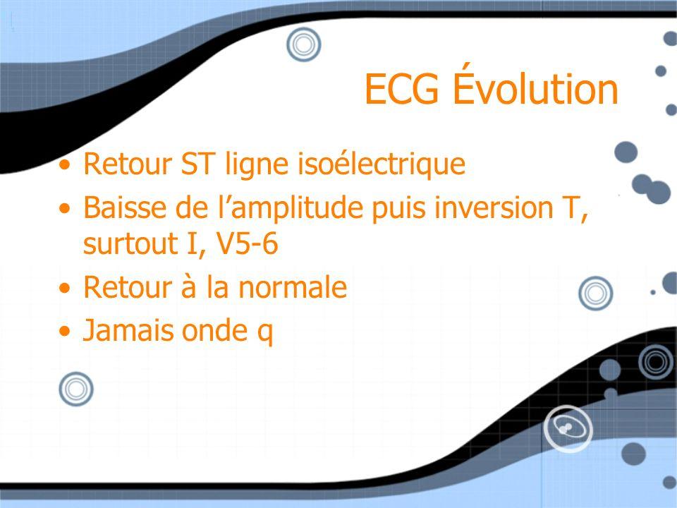 ECG Évolution Retour ST ligne isoélectrique
