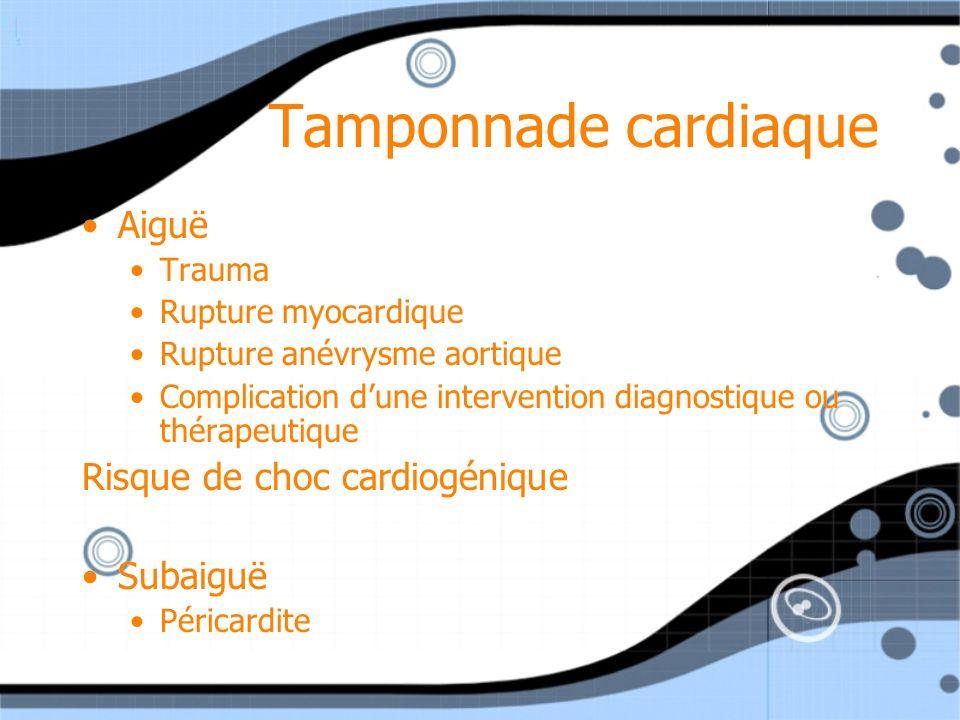 Tamponnade cardiaque Aiguë Risque de choc cardiogénique Subaiguë