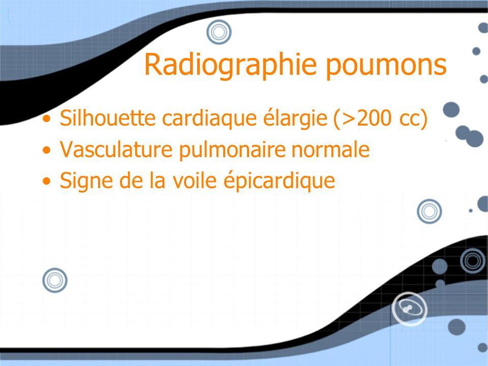 Radiographie poumons Silhouette cardiaque élargie (>200 cc)