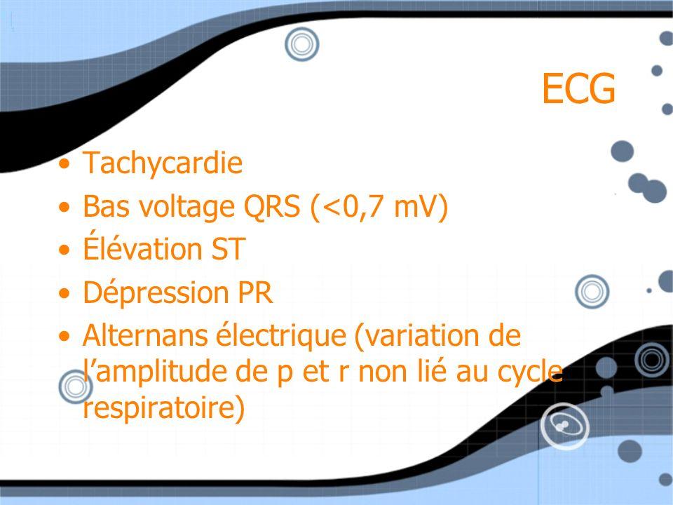 ECG Tachycardie Bas voltage QRS (<0,7 mV) Élévation ST