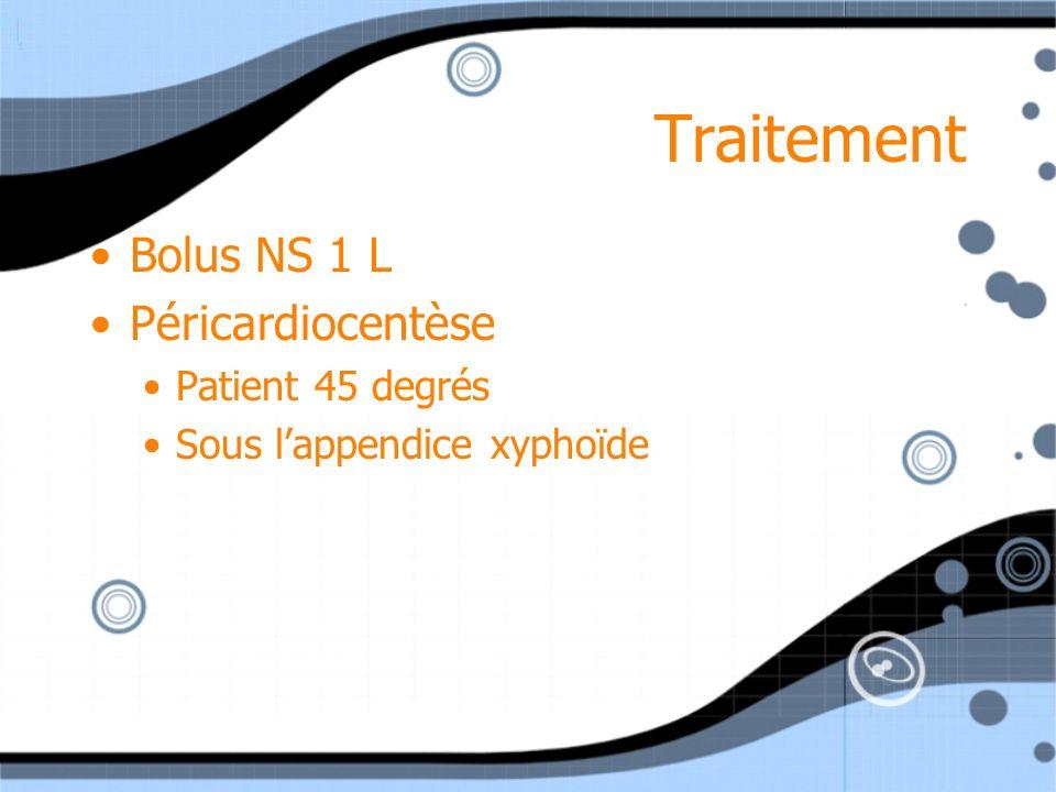 Traitement Bolus NS 1 L Péricardiocentèse Patient 45 degrés