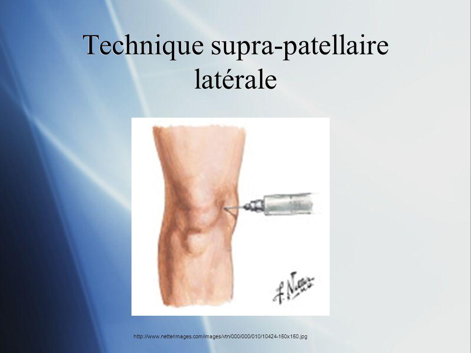 Technique supra-patellaire latérale