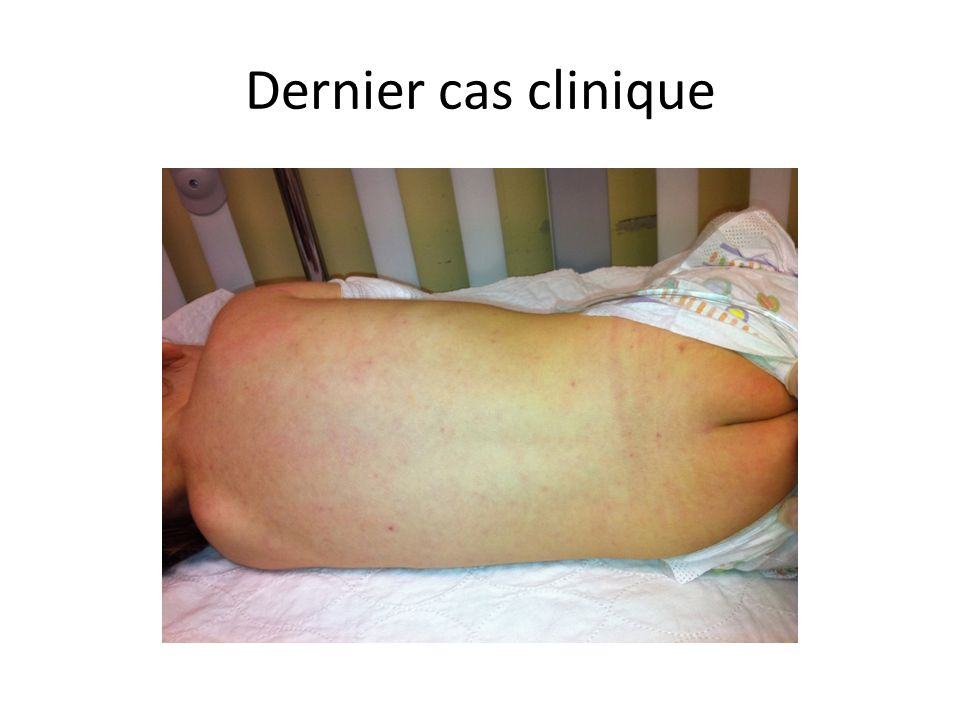 Dernier cas clinique