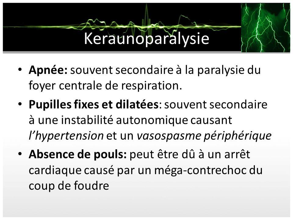 Keraunoparalysie Apnée: souvent secondaire à la paralysie du foyer centrale de respiration.