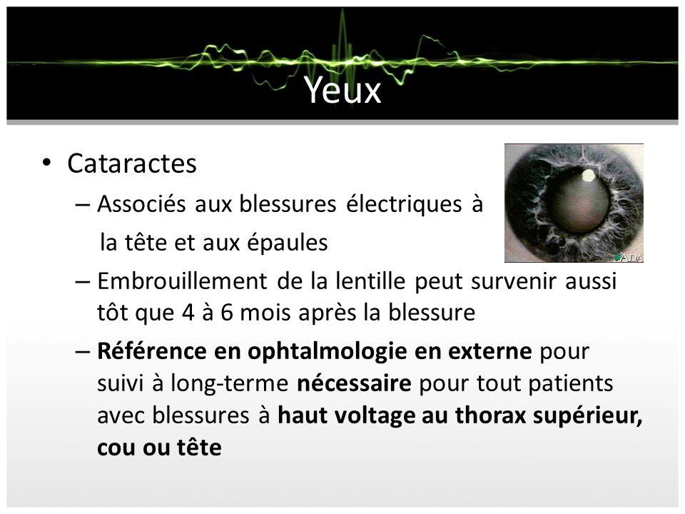 Yeux Cataractes Associés aux blessures électriques à