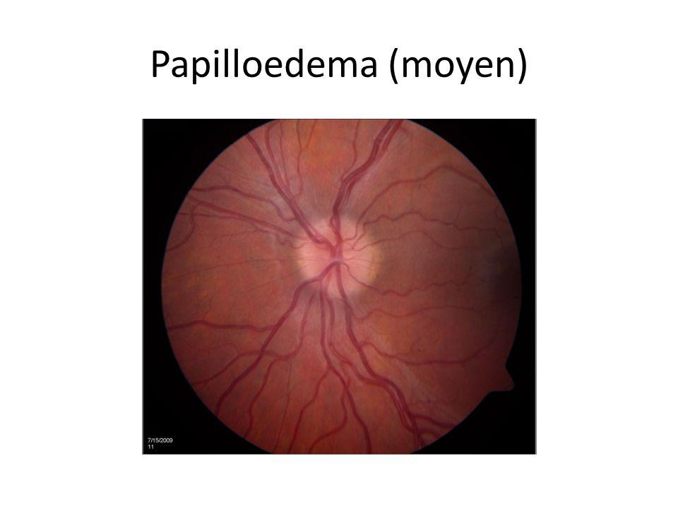 Papilloedema (moyen)