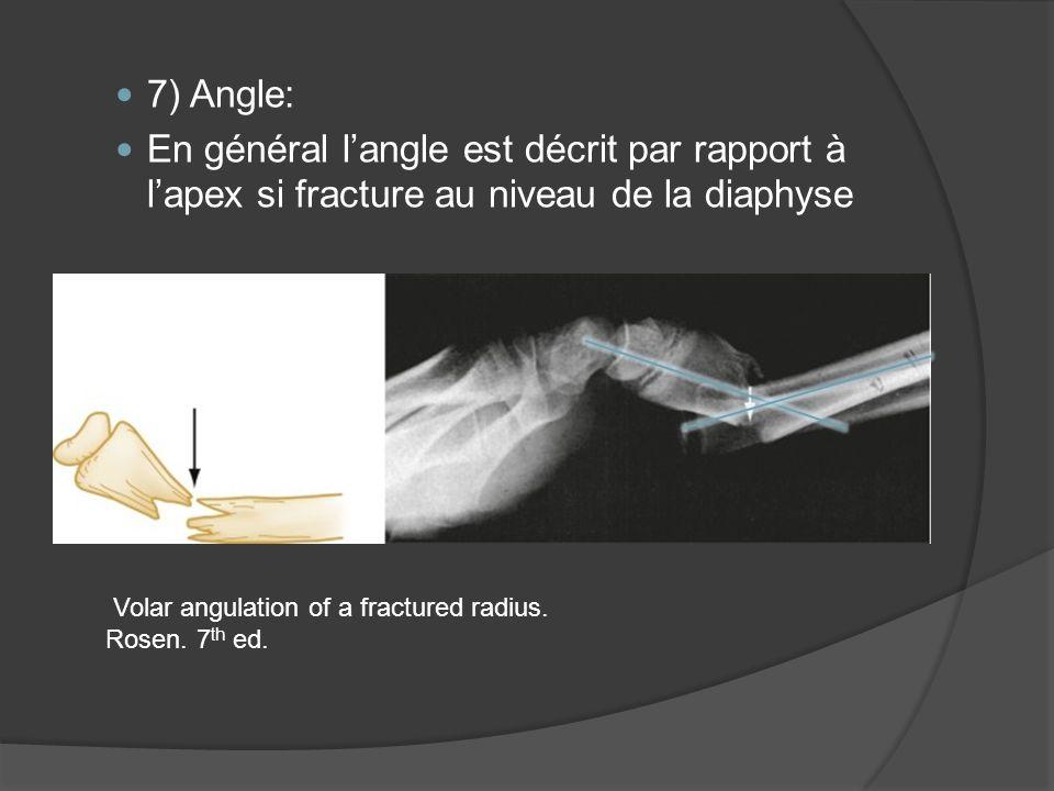 7) Angle: En général l'angle est décrit par rapport à l'apex si fracture au niveau de la diaphyse. Volar angulation of a fractured radius.