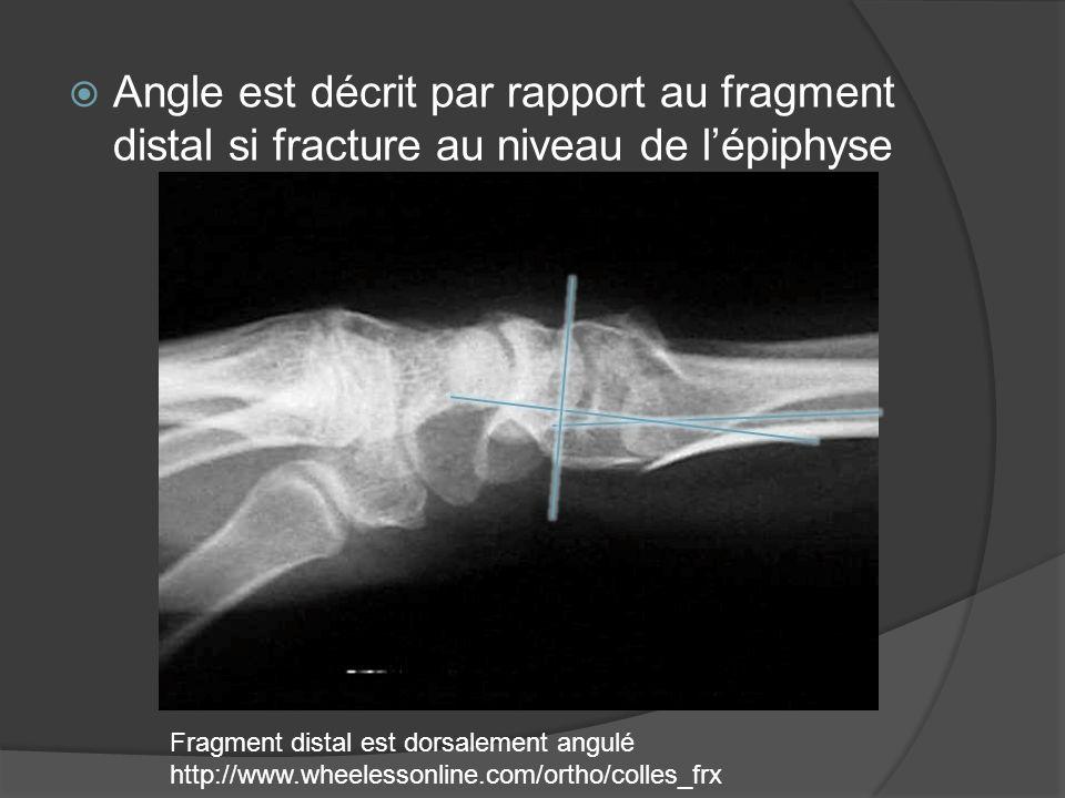 Angle est décrit par rapport au fragment distal si fracture au niveau de l'épiphyse