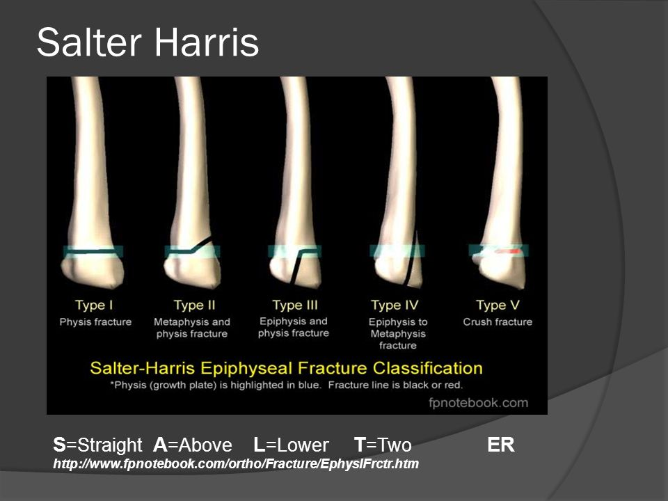 Salter Harris S=Straight A=Above L=Lower T=Two ER