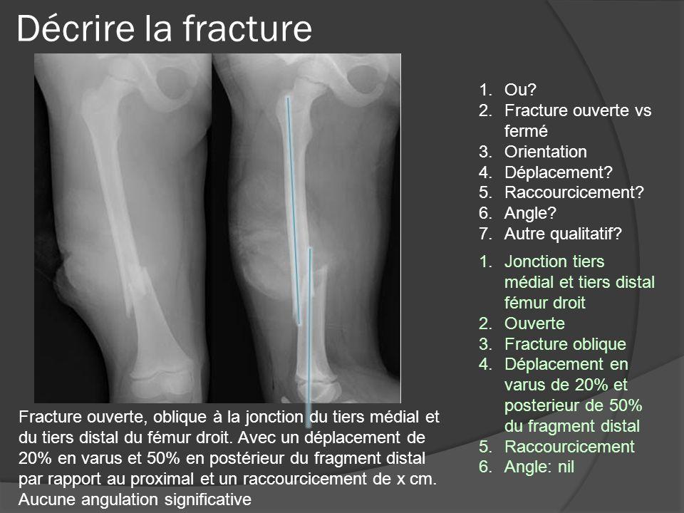 Décrire la fracture Ou Fracture ouverte vs fermé Orientation