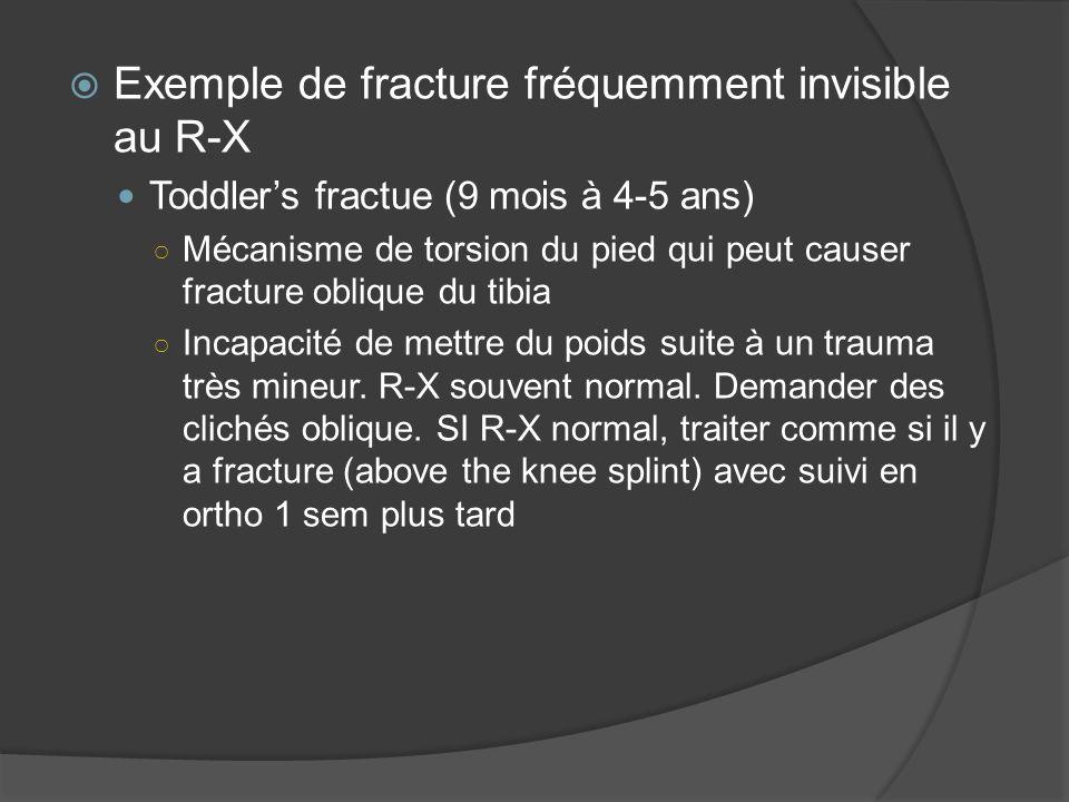 Exemple de fracture fréquemment invisible au R-X