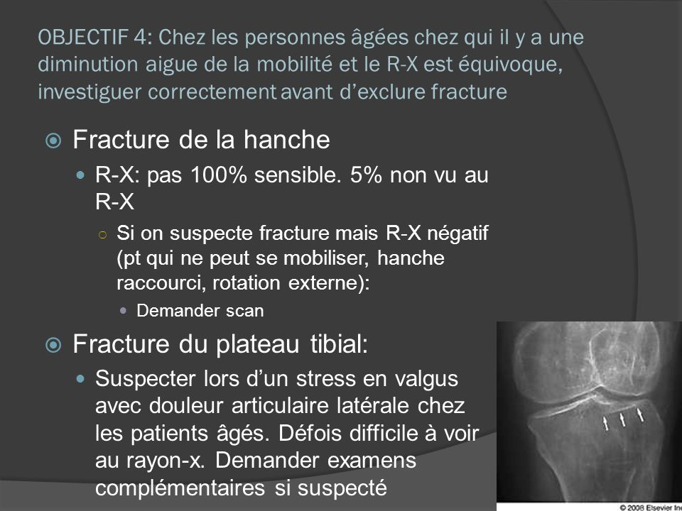 Fracture du plateau tibial: