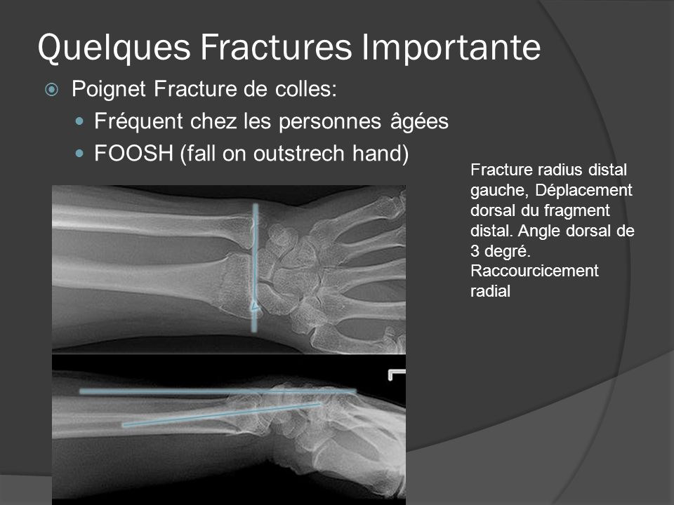 Quelques Fractures Importante