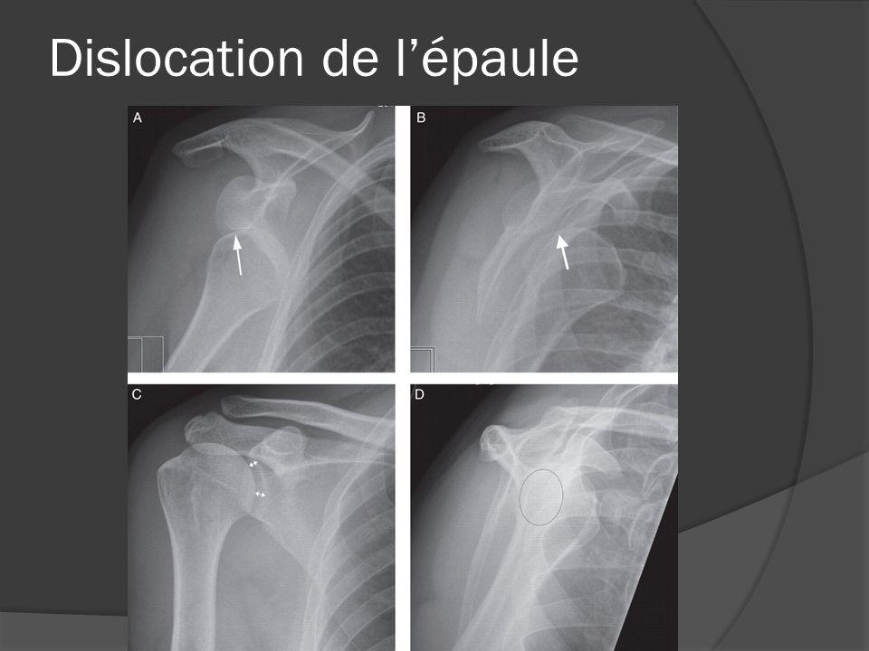 Dislocation de l'épaule