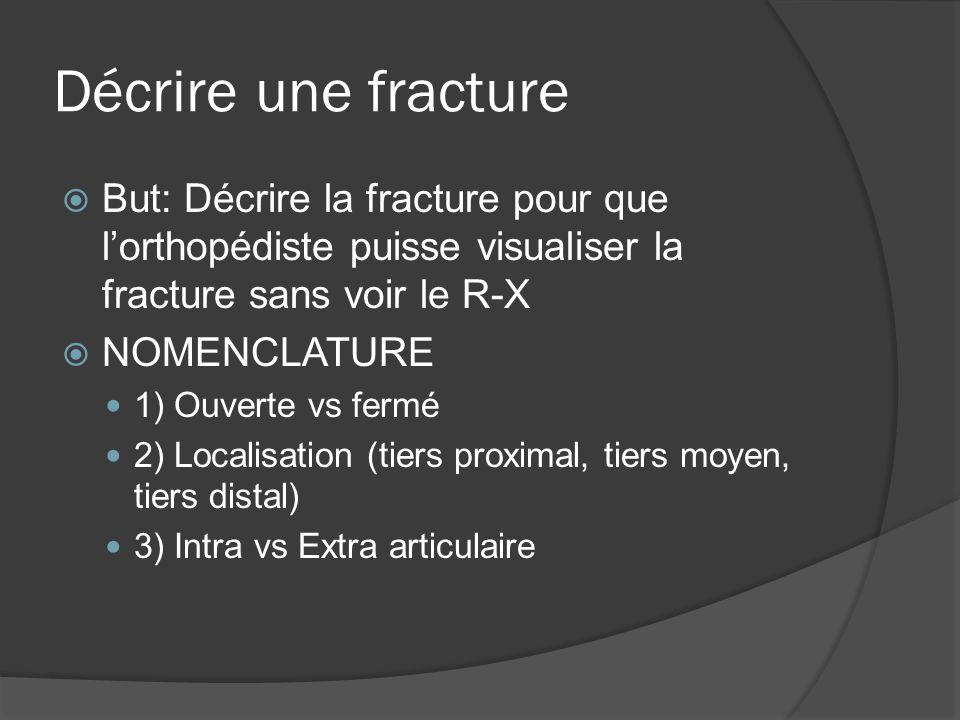 Décrire une fracture But: Décrire la fracture pour que l'orthopédiste puisse visualiser la fracture sans voir le R-X.