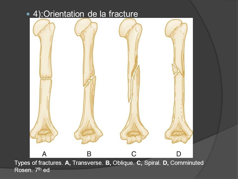 4):Orientation de la fracture