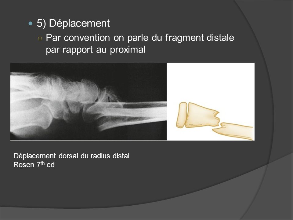 5) Déplacement Par convention on parle du fragment distale par rapport au proximal. Déplacement dorsal du radius distal.