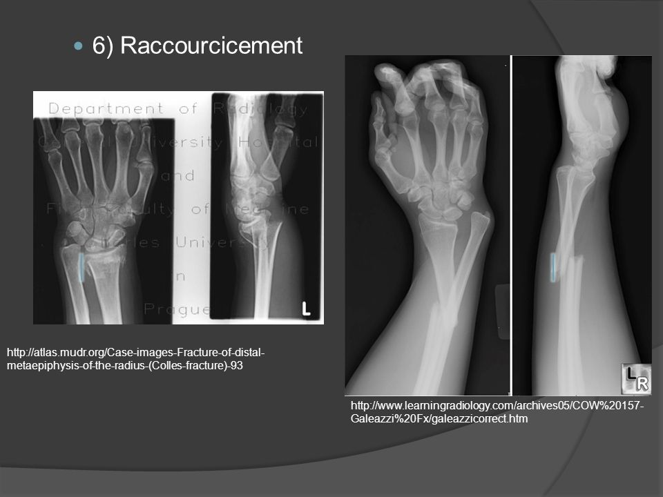 6) Raccourcicement http://atlas.mudr.org/Case-images-Fracture-of-distal-metaepiphysis-of-the-radius-(Colles-fracture)-93.