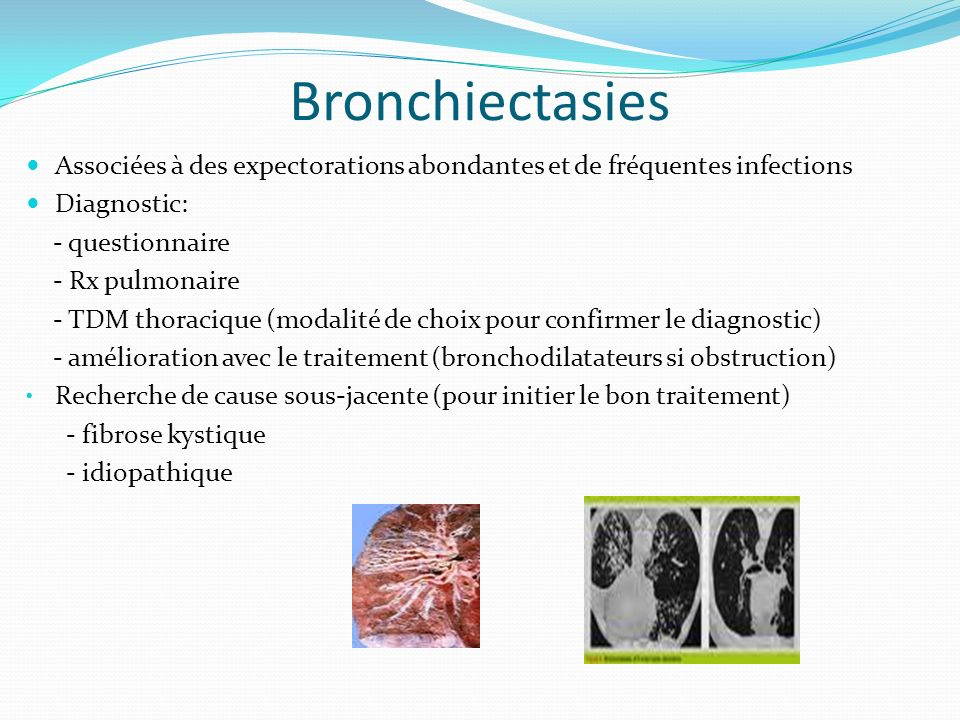 Bronchiectasies Associées à des expectorations abondantes et de fréquentes infections. Diagnostic: