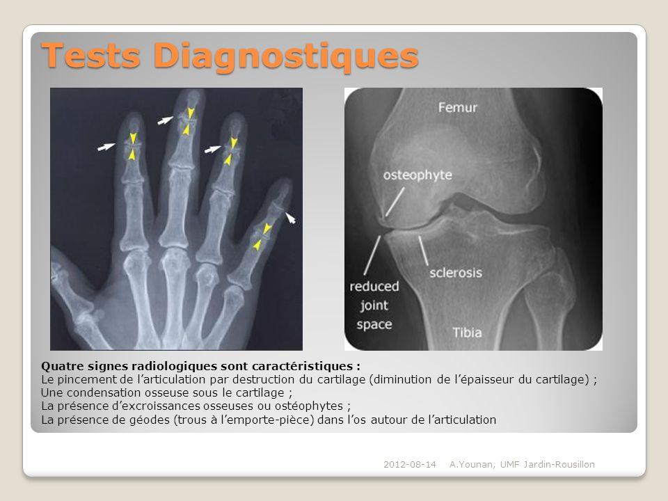 Tests Diagnostiques Quatre signes radiologiques sont caractéristiques :