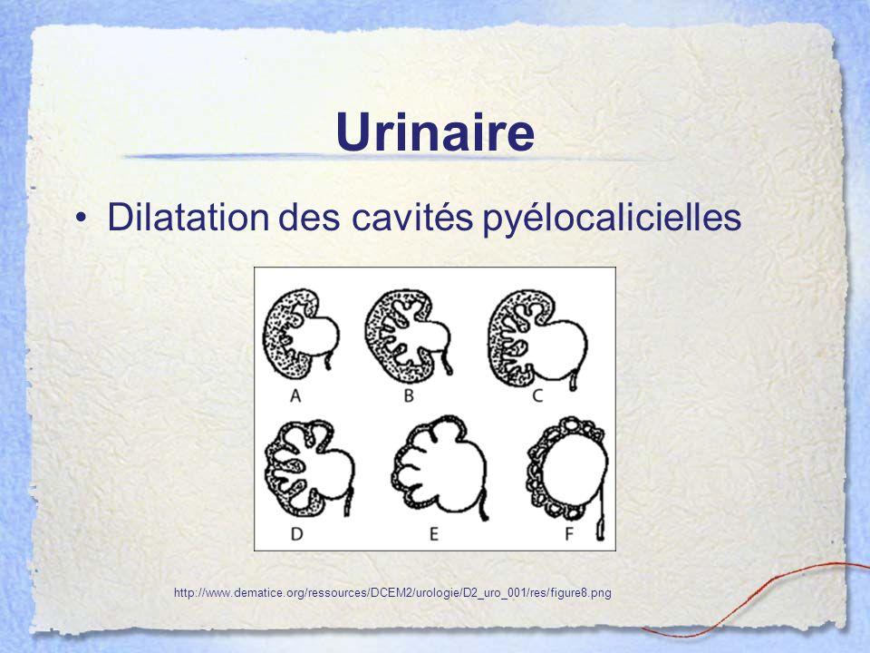 Urinaire Dilatation des cavités pyélocalicielles