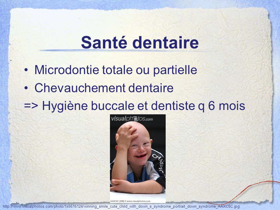 Santé dentaire Microdontie totale ou partielle Chevauchement dentaire
